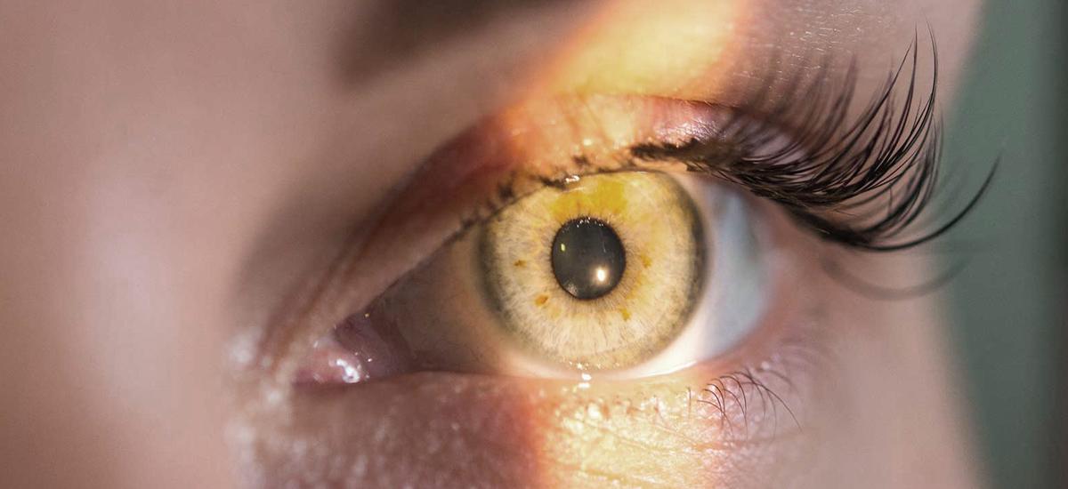 What Causes Astigmatism to Worsen?